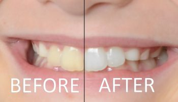 How to Whiten Teeth in Photoshop thumbnail